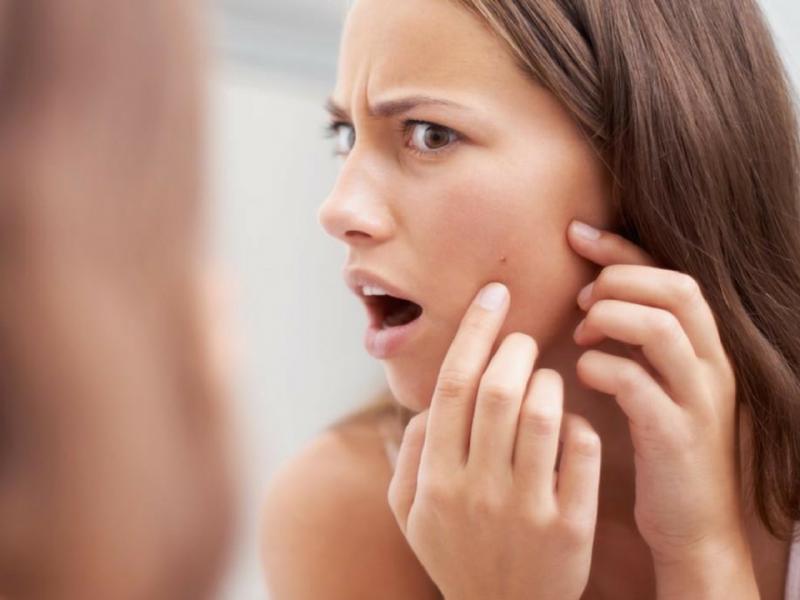 como curar el acné maduro-causas y tratamientos