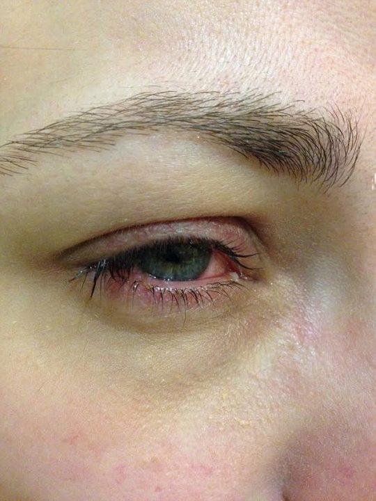 Alergia ocular por cosméticos falsos